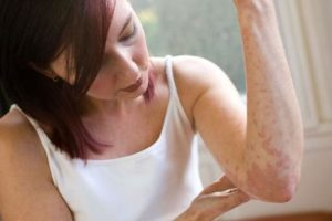 аллергия кожи